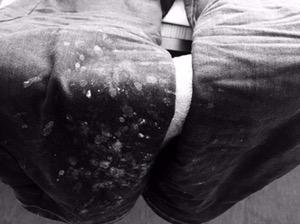 Hosenbeine